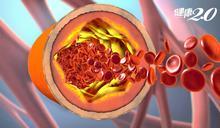心臟科醫師:「發炎」害你動脈硬化!人體為何會出現發炎反應?