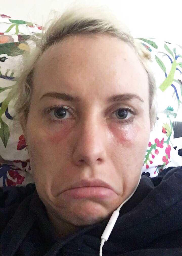A makeup artist burnt my eyes. Photo: Gillian Wolski.