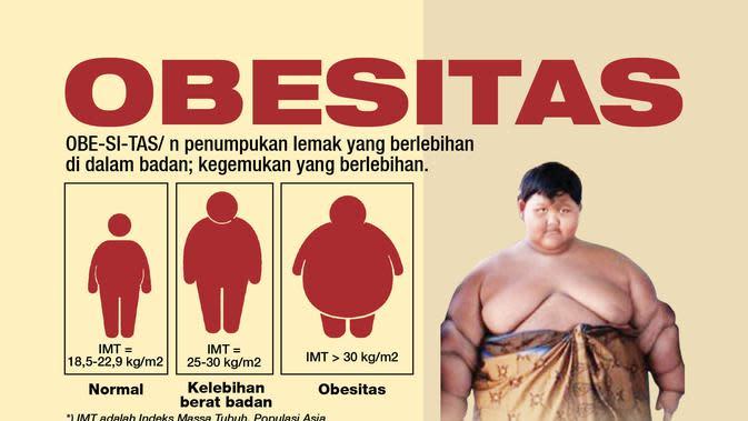Arya Permana, salah satu contoh kasus obesitas yang mengkhawatirkan (liputan6.com/Tri yasni)