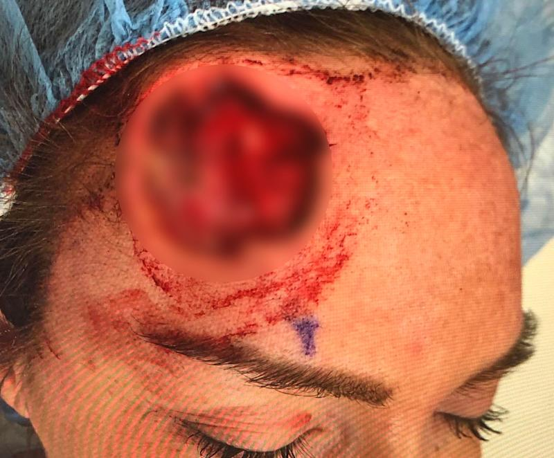 Keri Lynn Noble, 29, had to have cancerous cells removed from her forehead due to excessive exposure to sunlight.