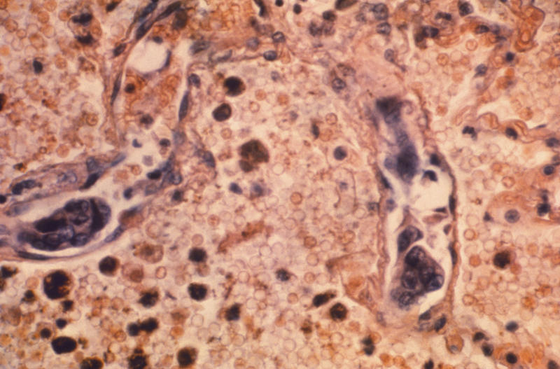This 1964 photo made available by the Centers for Disease Control and Prevention shows a lung tissue specimen from a patient with adenocarcinoma of the lung. On Wednesday, Jan. 8, 2020, researchers reported the largest-ever decline in the U.S. cancer death rate, and they are crediting advances in the treatment of lung tumors. Most lung cancer cases are tied to smoking, and decades of declining smoking rates means lower rates of lung cancer diagnoses and deaths. (Dr. Ellis/Emory University, Department of Pathology/CDC via AP)