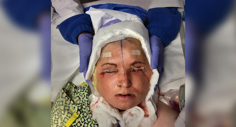 The face transplant (pictured) took place in 2017 at the Cleveland Clinic, the same clinic that performed the United States' first face transplant on Connie Culp in 2008