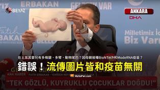 【錯誤】土耳其報導婦女接種BioNTech和ModeRNA疫苗後,嬰兒出現多手腳尾巴的照片?圖片與疫苗無關
