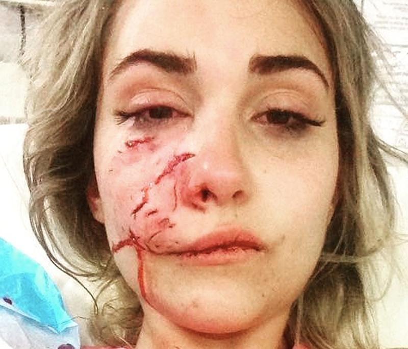 Suzel Mackintosh was attacked by her friend's dog while on a New Years Eve camping trip in Western Australia.