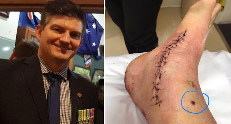 Mr Schulze with his military medals (left). The melanoma on his right ankle (right).