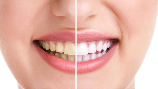 5 Cara Memutihkan Gigi Alami dan Ampuh, Tanpa Biaya Mahal