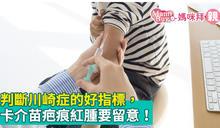 判斷川崎症的好指標,卡介苗疤痕紅腫要留意!