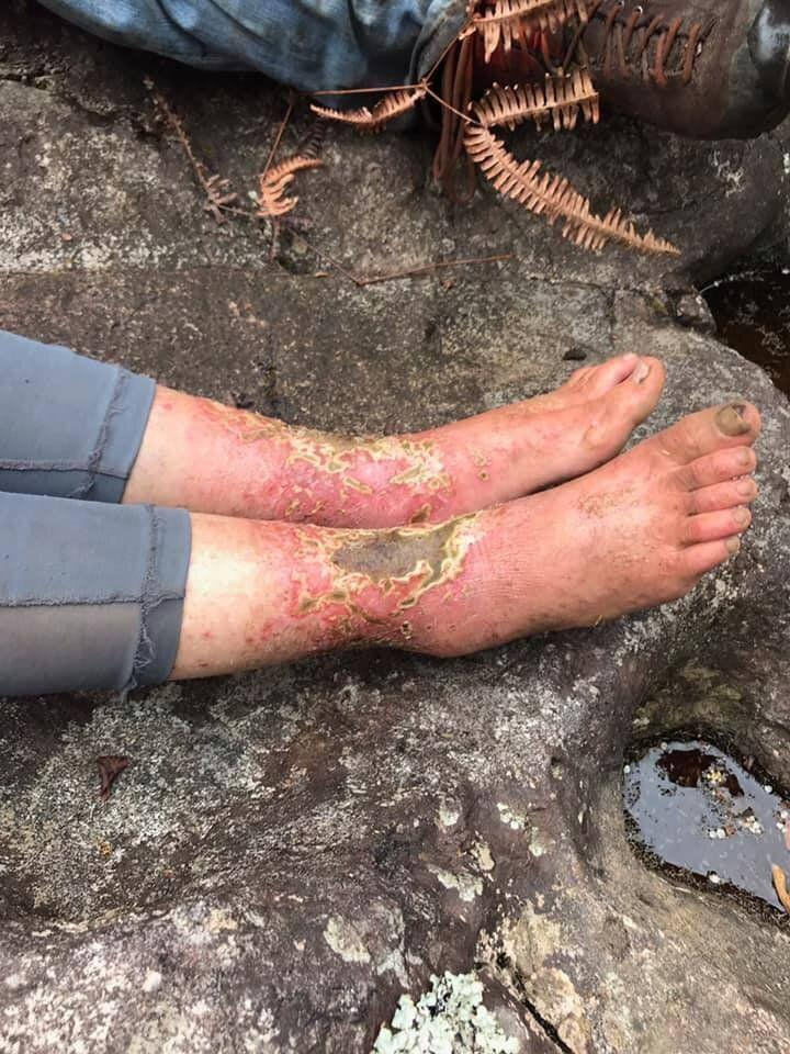 Amanda Eller's feet and legs were injured during her time lost in the Maui forest. Pictured are her raw, red ankles covered in scabbing injuries.