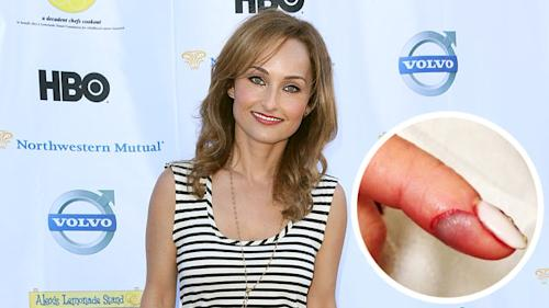 Giada Slices Open Finger During Live Special