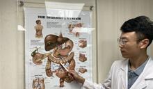 肚子痛以為胃潰瘍 竟是大腸癌第2期