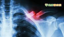 肋骨骨折X光為何沒有看出來? 急診醫師曝真相