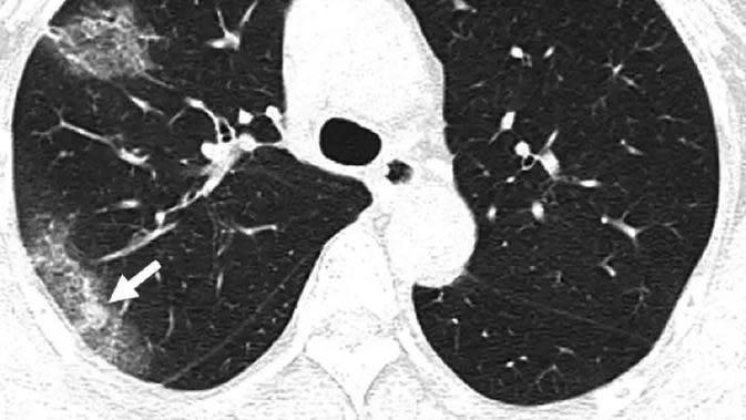 ilustrasi paru-paru/credit Weifang Kong and Prachi P. Agarwal