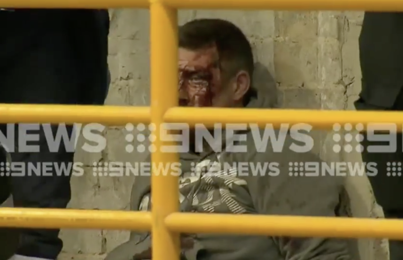A bloodied man, believed to be Jonathan Dick, under arrest in Melbourne's CBD on Monday morning. Source: Nine News