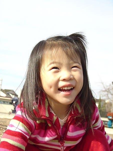 ما هى الغمازات و ما هو سر وجودها ؟ 450px-Asian_girl_with_dimples