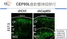 長庚陽明團隊發現 「平腦症」致病新基因