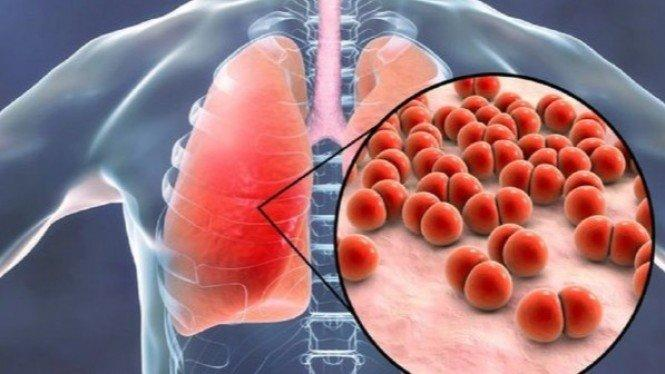 6 Gejala Kanker Paru-paru yang Sering Diabaikan