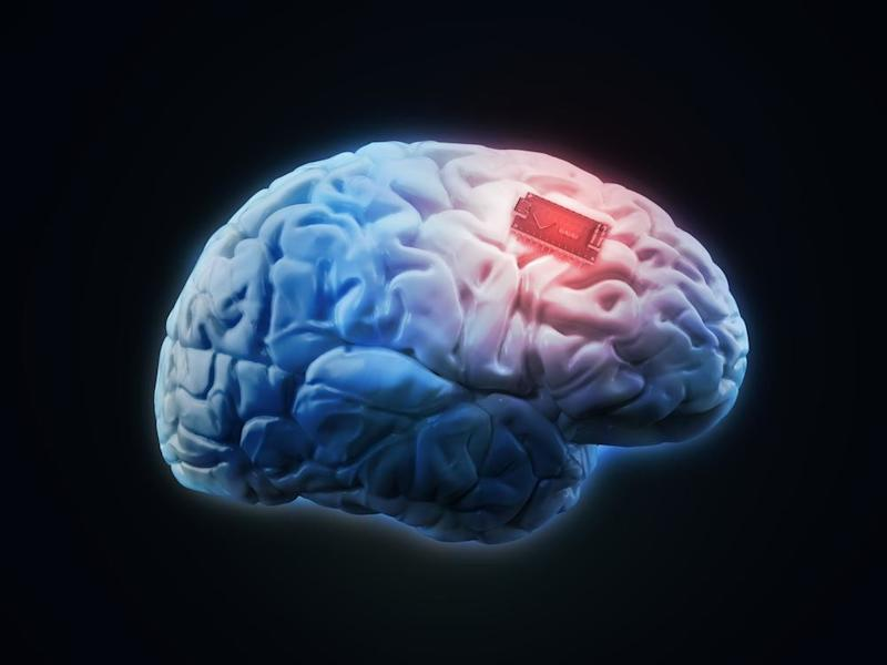 Brain-stimulating implant can turn down Parkinson's symptoms as required