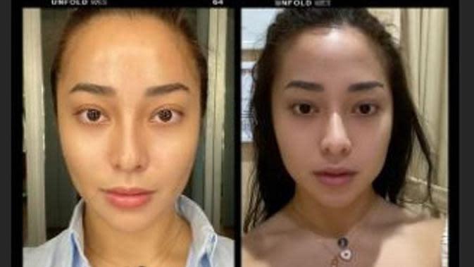 Tampil Beda, Nikita Willy Unggah Foto Sebelum dan Sesudah Perawatan Botox. (dok.Instagram @nikitawillyofficial94/Insta Story/Henry)
