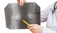 膝蓋退化年齡下降 保養關節要趁早 該不該換膝關節?