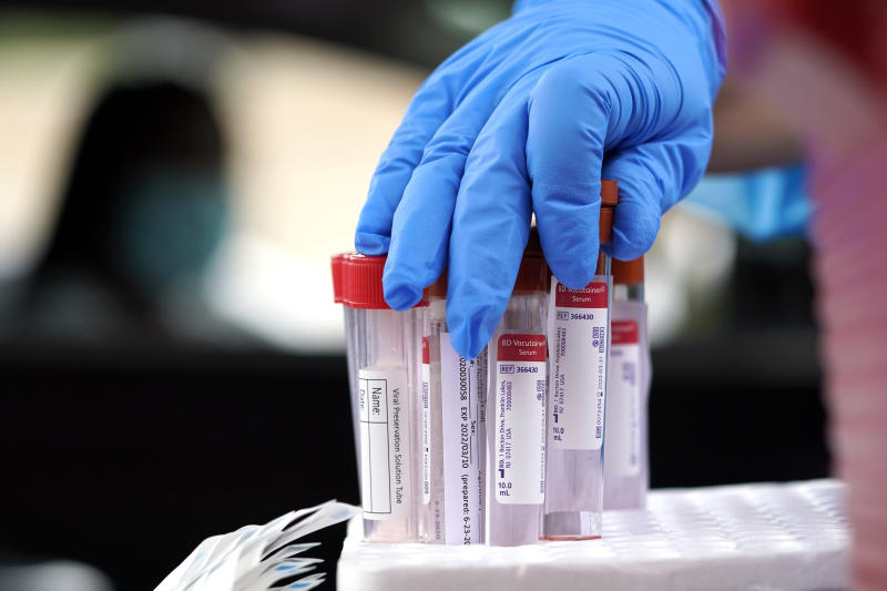 FILE - In this June 26, 2020, file photo Healthcare professional Kenzie Anderson grabs a test tube for a sample at United Memorial Medical Center COVID-19 testing site in Houston. (AP Photo/David J. Phillip, File)