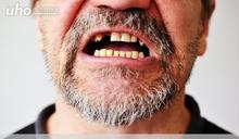 老人缺牙不重建 恐大增感染風險!