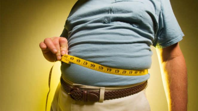 Ilustrasi obesitas.