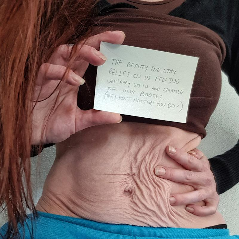 A photo of Sherie Grant baring her stomach.