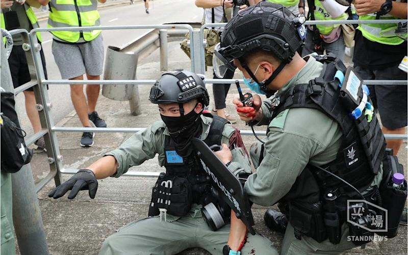 A police officer after being stabbed with a sharp object during the protests in Hong Kong - Stand News/News Scan