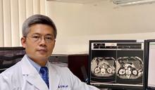 免疫療法問世 食道癌患者佳音