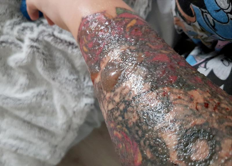 Glasgow woman Stephanie Lynn's arm laser tattoo removal became badly infected.