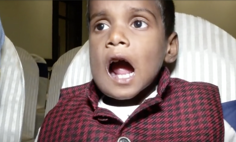 Ravindran opens his mouth after the operation to show off his new mouth. Source: Reuters