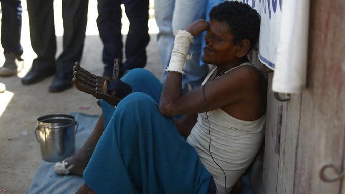 Seorang pria penderita kusta, Ram menggunakan tangan palsu 3D yang diberikan Disaster Hack di Kathmandu (14/7). (AFP Photo/Gopen Rai)