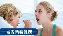 舌頭也有顏值?5大方向揪出健康殺手