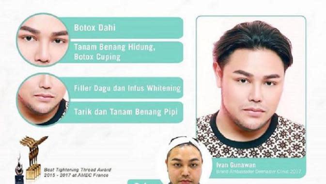 Ivan Gunawan ikut menjalani perawatan botox. (Sumber: Brilio.net/Istimewa)