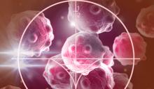 容易被忽略的癌症-神經內分泌腫瘤!反覆持續腹瀉十年原來是癌症徵兆