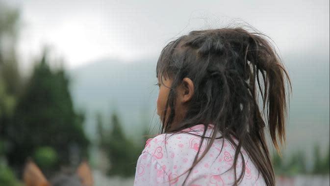Rambut gimbal ini terjadi secara alamiah (Liputan6.com/Mochamad Khadafi)
