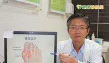 患痛風勿怕吃藥傷身 延誤治療恐嚴重傷腎