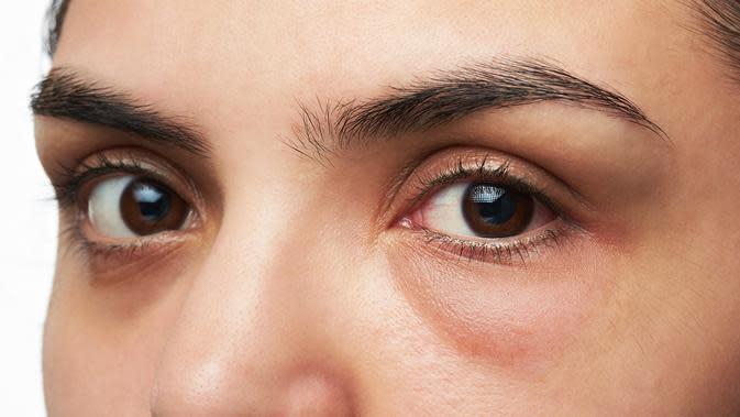 Siapa yang berisiko terkena glaukoma? (sumber: iStockphoto)