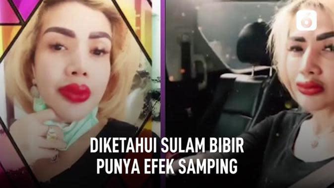 VIDEO: Efek Samping Sulam Bibir Seperti Barbie Kumalasari