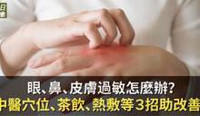 眼、鼻、皮膚過敏怎麼辦?中醫穴位、茶飲、熱敷等3招有助改善!