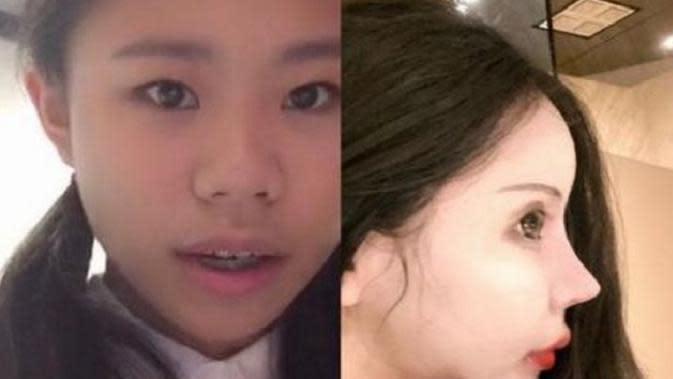 Remaja 15 tahun lakukan operasi plastik agar mirip barbie. Sumber: Weibo