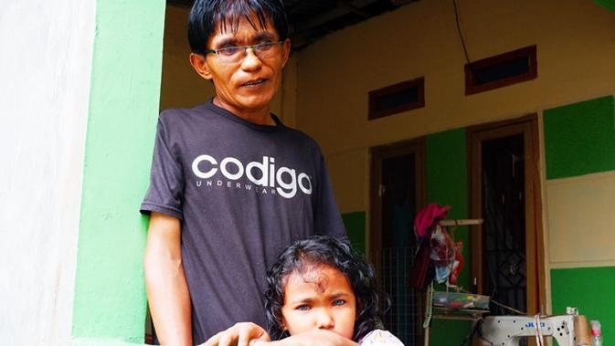 Anak bermata biru di Pekanbaru, Dzakira Azizy Naqiya bersama ayahnya Zulbahri yang juga punya mata biru. (Liputan6.com/M Syukur)
