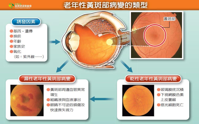 年輕人也會有黃斑部病變?近視超過一個度數就有可能!