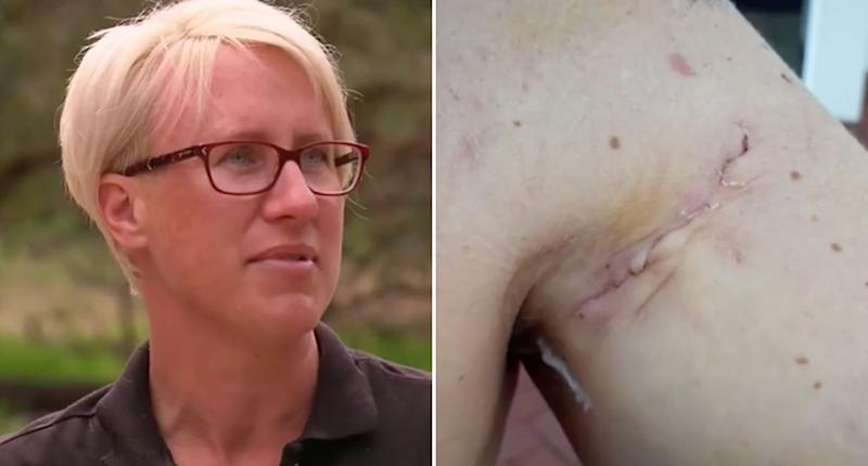 Pictured is Perth mum Kate Jessop, 40, and a 4cm-deep laceration to her shoulder.