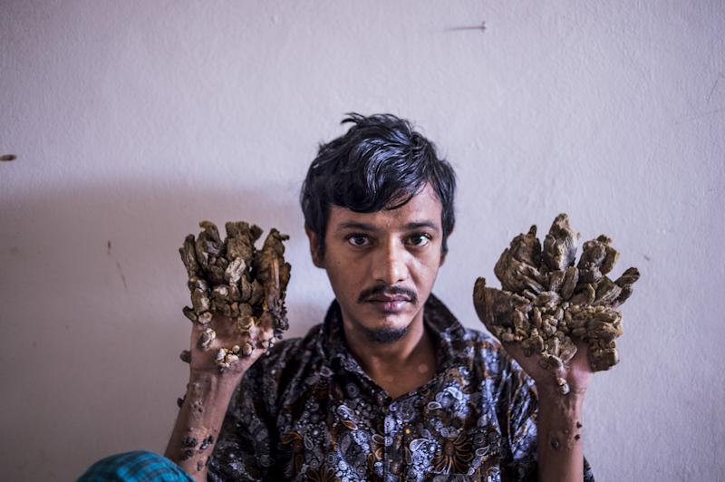 "Abul Bajandar , 28, dubbed ""Tree Man"" for massive bark-like warts on his hands and feet."