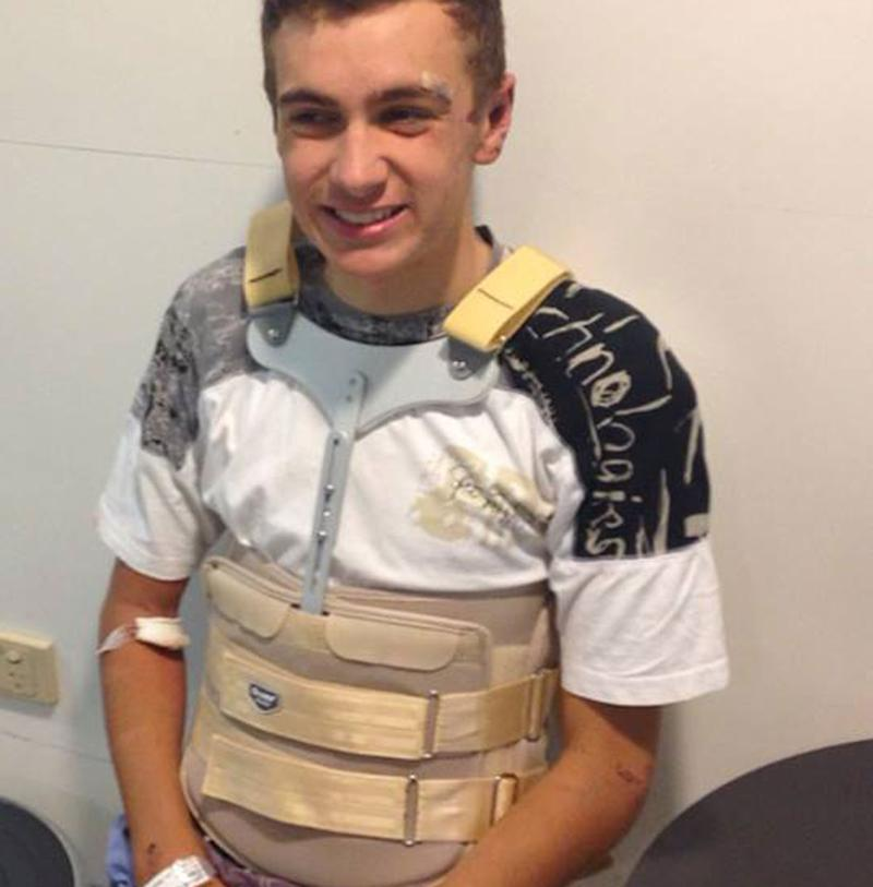 Harry Kooros, wearing a back brace, said he was 'ridiculously lucky' not to end up paralysed after hitting a pothole in Bowral and fracturing three vertebrae. Source: Supplied/ Harry Kooros