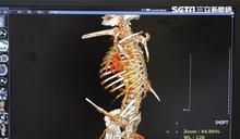 遭鋼筋貫穿身體 撿命後又發現肝癌
