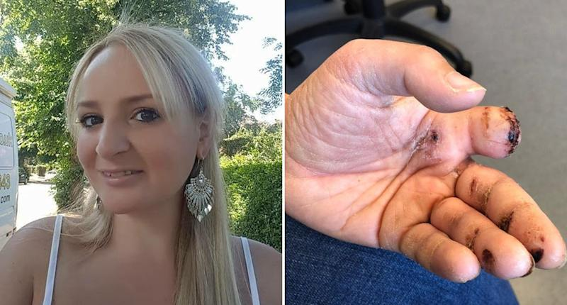 UK delivery driver Nicola had her finger bitten off by a dog while she was delivering parcels.