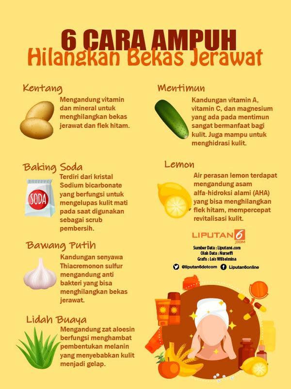 Infografis 6 Cara Ampuh Hilangkan Bekas Jerawat. (Liputan6.com/Lois Wilhelmina)