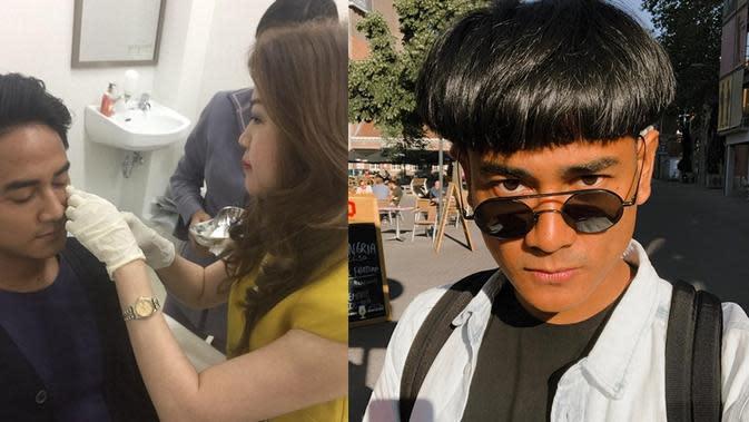 Dwi Andhika sebelum dan sesudah menjalani botox. (Foto kolase: Instagram/@dr.chen_aesthetic & Instagram/@dwiandhika3486)